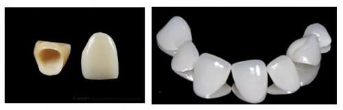 Làm cầu răng ở đâu tốt tại Hà Nội? 2