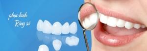 Cách làm răng đỡ vẩu nào hiệu quả nhất?2
