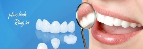 Bọc sứ răng thưa mang lại vẻ đẹp thẩm mỹ cho hàm răng