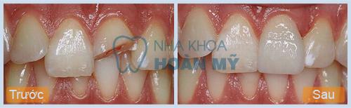 Cách chữa răng bị mẻ nào hiệu quả nhất
