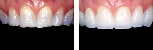 Ưu nhược điểm của răng sứ kim loại trong phục hình răng 1