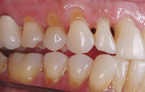 Răng bị mòn chủ yếu do ăn nhai mạnh hoặc tác dụng của axit