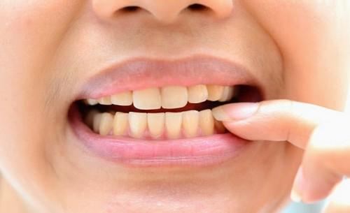 Bọc sứ khi mòn răng là cách bảo vệ răng hiệu quả