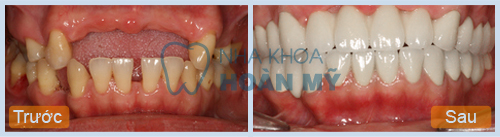 Làm cầu răng áp dụng khi nào là tốt nhất?