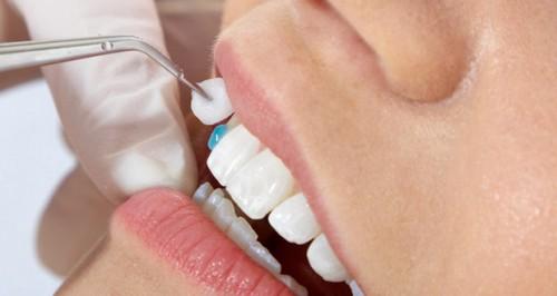Những lưu ý cần biết trước khi bọc răng sứ 2