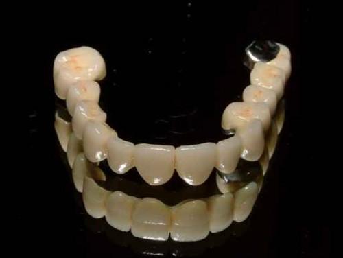 Những lợi ích không thể bỏ qua của việc bọc răng sứ 1