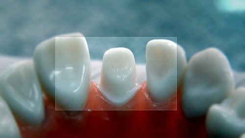 Những lợi ích không thể bỏ qua của việc bọc răng sứ 5