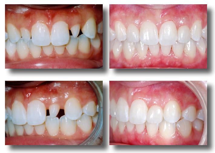 Những tiêu chuẩn khi làm răng sứ cần đạt được 1