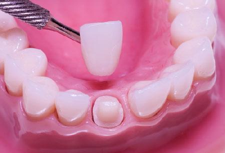 Cách phục hình răng cửa bị vỡ, mẻ nhanh, hiệu quả nhất năm 2017 2