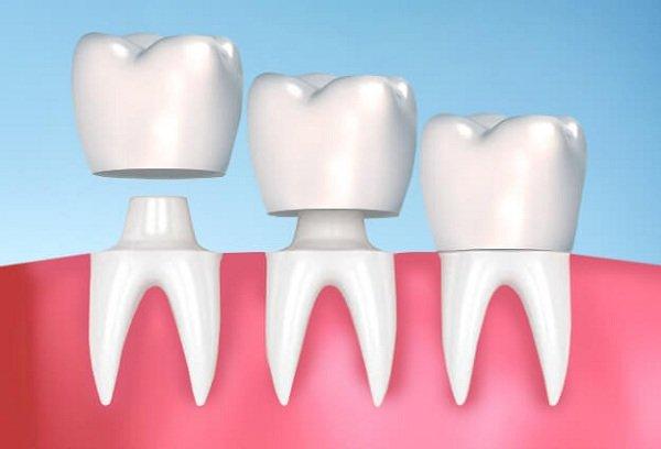 Bọc răng sứ cho răng bị nhiễm Tetracycline 2