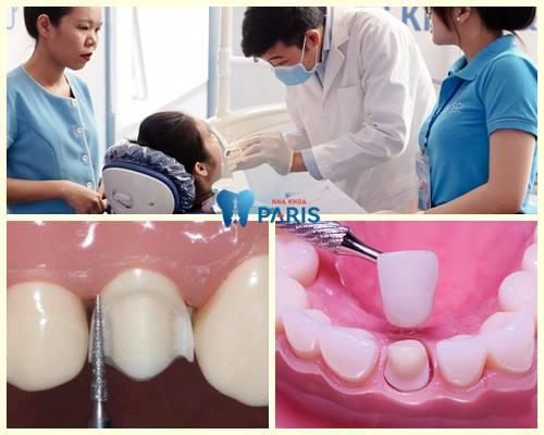 bọc răng sứ có gây tai biến gì không2