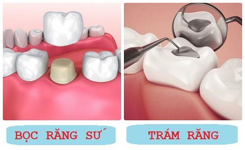 TOP 4 ưu điểm của bọc răng sứ so với trám răng 1