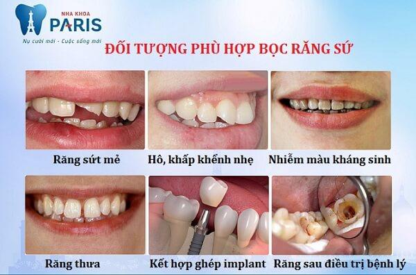 TOP 4 ưu điểm của bọc răng sứ so với trám răng 2