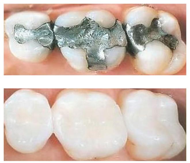 TOP 4 ưu điểm của bọc răng sứ so với trám răng 4