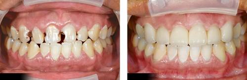 Bọc sứ cho răng cửa bị sâu mất bao lâu?