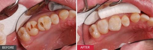 Bọc răng sứ cho răng sâu có thực sự hiệu quả? BS nha khoa tư vấn 3