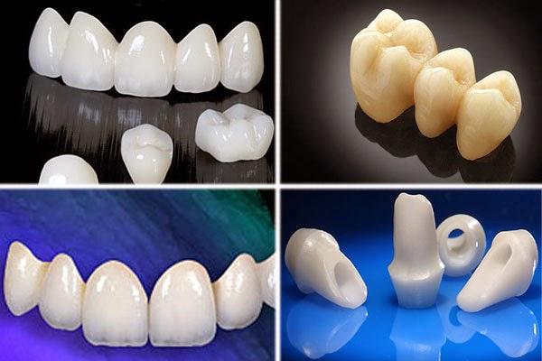 Bọc răng sứ có tốt không khi phục hình răng 1