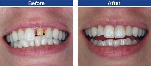 Bọc răng sứ có tốt không khi phục hình răng 4