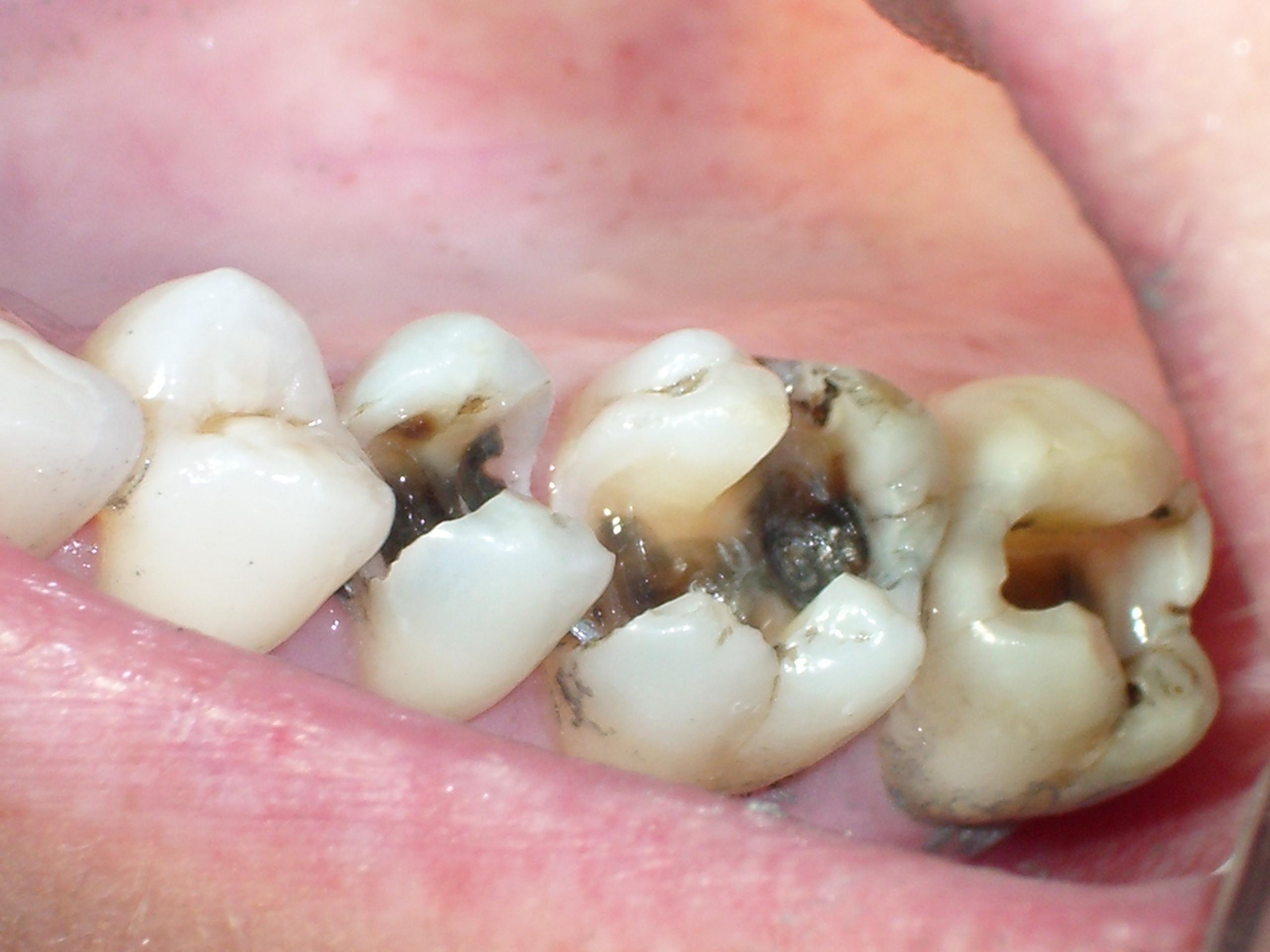 Bọc răng sứ cho răng sâu có thực sự hiệu quả? BS nha khoa tư vấn 1