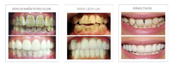 Cách khắc phục thiếu sản men răng bằng bọc sứ cho một hàm răng đẹp - ảnh
