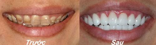 Bọc răng sứ là cách khắc phục thiếu sản men răng hiệu quả nhất - ảnh