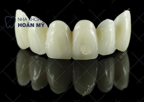Dòng răng sứ nào phục hình cho răng cửa tốt nhất? 1
