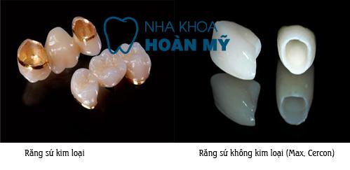 Dòng răng sứ nào phục hình cho răng cửa tốt nhất? 2