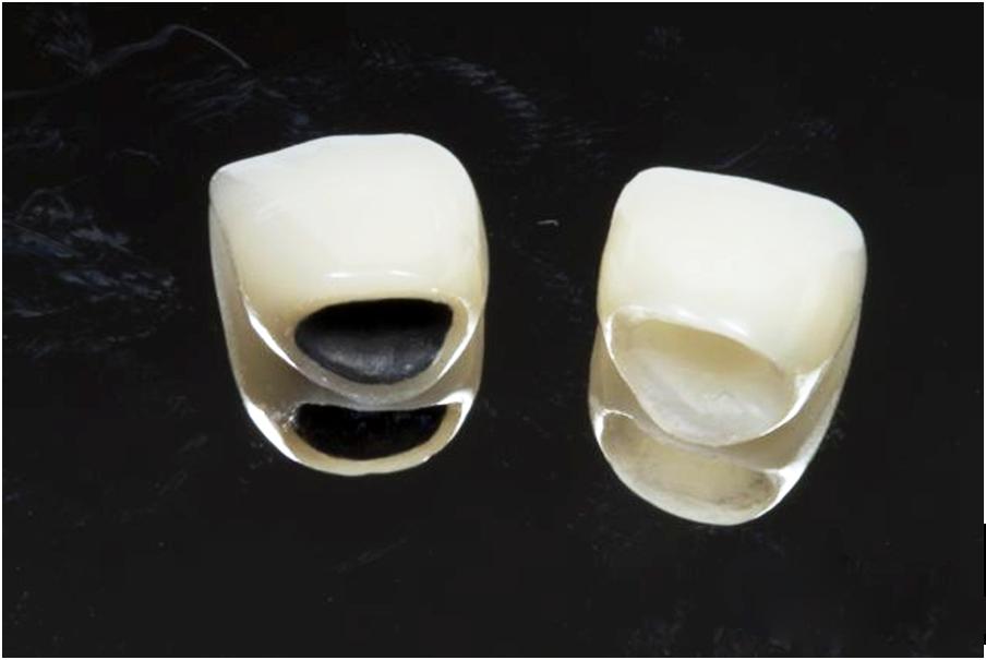 Dòng răng sứ nào phục hình cho răng cửa tốt nhất? 3