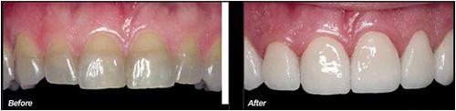 Nên hàn trám hay bọc răng sứ khi bị nhiễm Tetracycline?