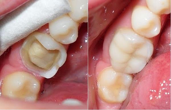 Tại sao phải bọc răng sứ sau khi chữa tủy? 4