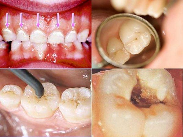 Tại sao phải bọc răng sứ sau khi chữa tủy? 3
