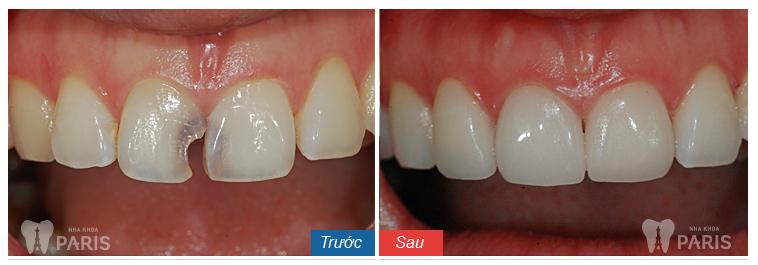 Ưu điểm của bọc răng sứ so với trám răng là gì? 7