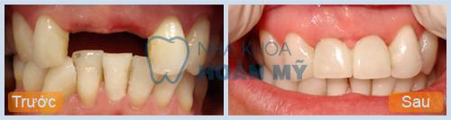 Ưu điểm và hạn chế của phương pháp làm cầu răng là gì? 1