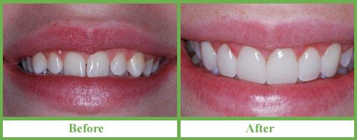 Giá ốp răng sứ có giống với bọc răng toàn sứ không2