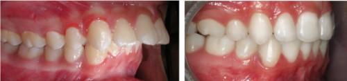 Phương pháp mài răng cửa bọc sứ có đau không