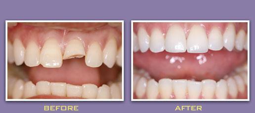 Phục hồi răng cửa bị mẻ bằng bọc sứ có hiệu quả không? 1