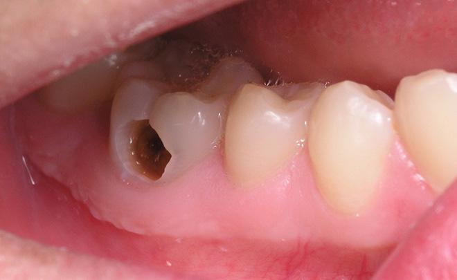 Răng sâu bị vỡ lớn có thể bọc sứ được không? 3