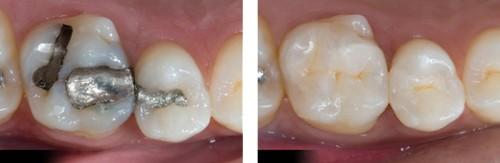 Răng sứ Cercon có tốt không nếu dùng để trồng răng hàm? 1