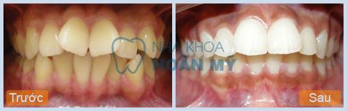 Chữa 2 răng vẩu phải làm sao hiệu quả và nhanh nhất? 2