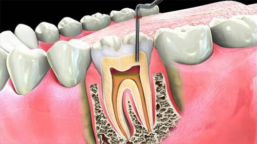 Bọc răng sứ sau khi rút tủy răng nhằm đảm bảo độ bền chắc cho hàm răng
