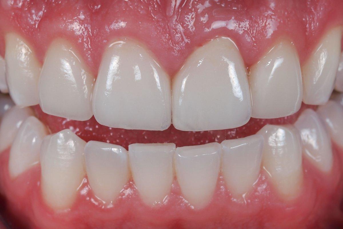 Những trường hợp nào nên mài cùi răng cửa? 3