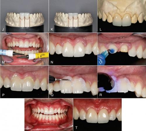 Quá trình chỉnh răng bị thưa bằng cách bọc răng sứ