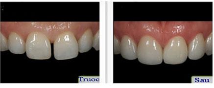 Bọc răng sứ cho hai răng cửa bị hở có làm răng quá to không?