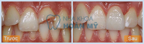 Làm gì với răng cửa bị mẻ