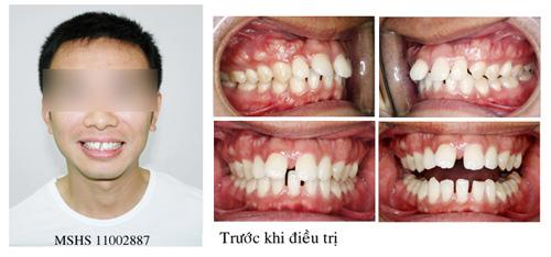 Nguyên nhân răng thưa dần do bẩm sinh - ảnh 1
