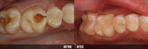 Làm răng hàm bằng răng sứ kim loại có tốt không 3