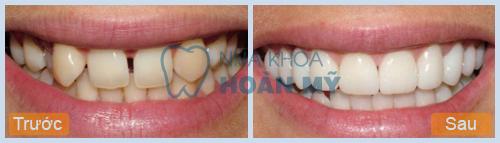 Tại sao răng lại thưa và cách khắc phục