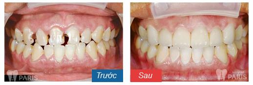 Bọc răng sứ tại sao lại chữa tủy răng mới thực hiện được?