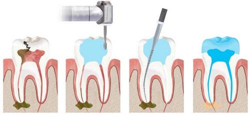 Lấy tủy răng cửa bị viêm có đau không?