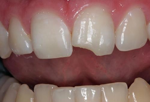 Cách chữa răng bị nứt nào hiệu quả nhất?